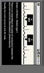 Download Electrocardiogram ECG Types 10.1 APK